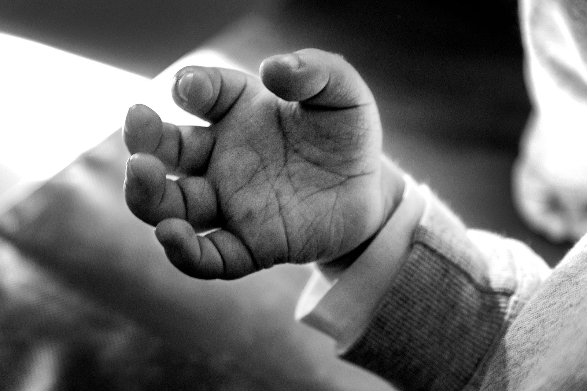 Detalle de la mano de Nacho donde puede apreciarse gran parte del deterioro en las articulaciones, fruto de la enfermedad.