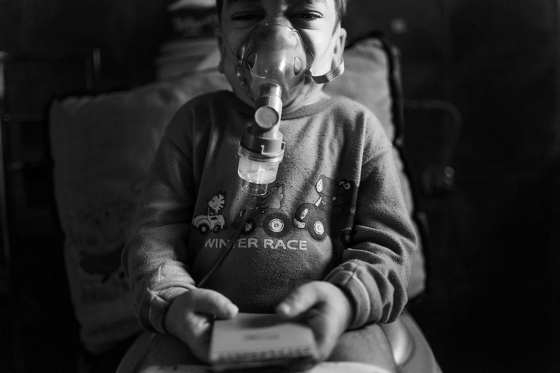 A lo largo del día, Nacho tiene que usar varias veces una mascarilla de oxígeno debido a los problemas respiratorios que conlleva su enfermedad.