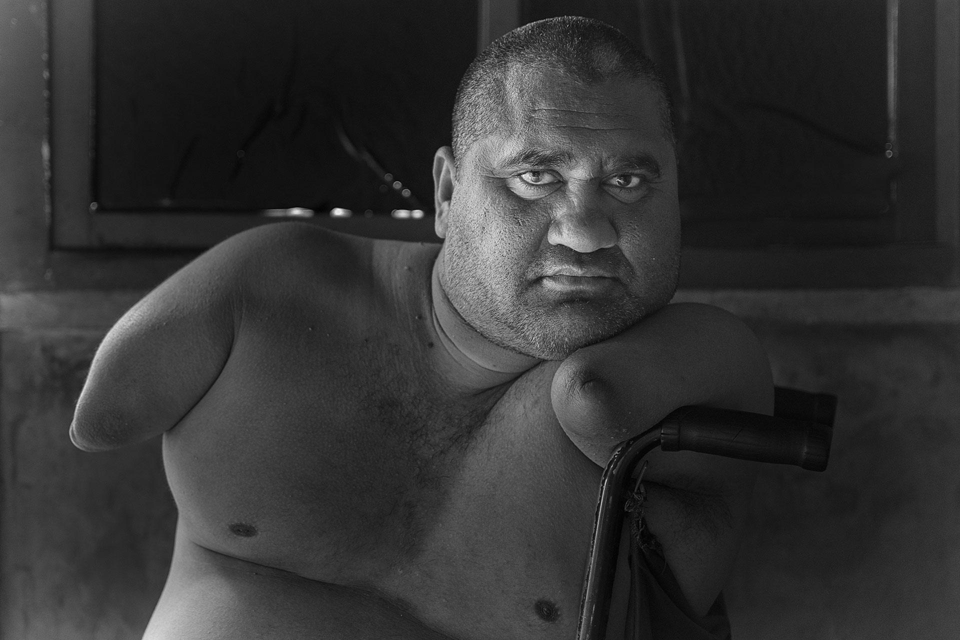 Jorge nació en un pequeño poblado rural de Argentina hace 37 años. Tiene una malformación congénita que le afecta sus cuatro extremidades debido a un medicamento con talidomida que le administraron a su madre un año antes de su nacimiento por fuera de cualquier protocolo de farmacovigilancia.