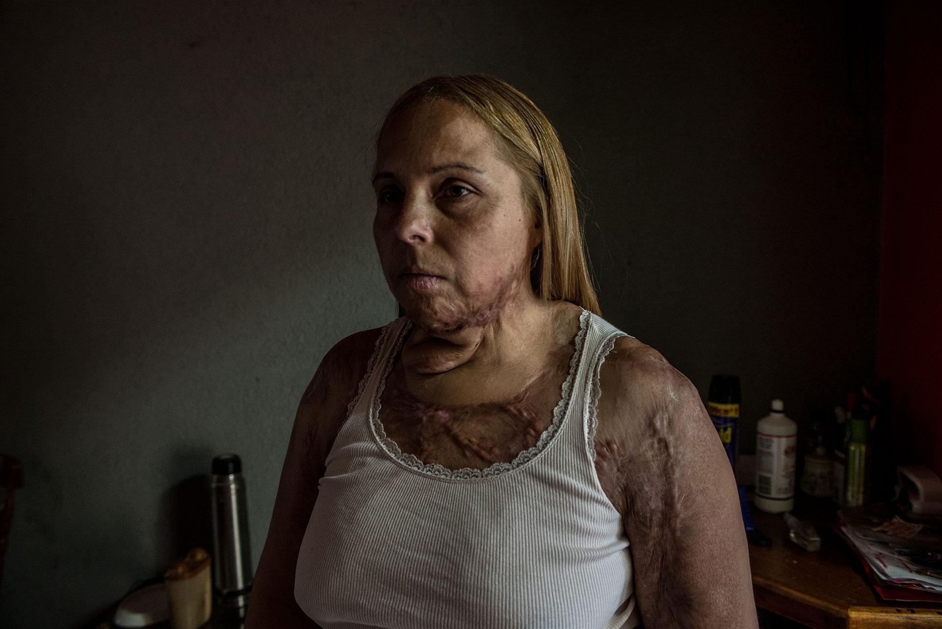 Karina Abregu fue quemada por su esposo, que es alcohólico, después de 11 años de violencia. Actualmente no puede trabajar debido a sus condiciones de salud y no recibe ningún tipo de ayuda del gobierno. Ella está luchando por sus derechos apoyada por su hermana Carolina.