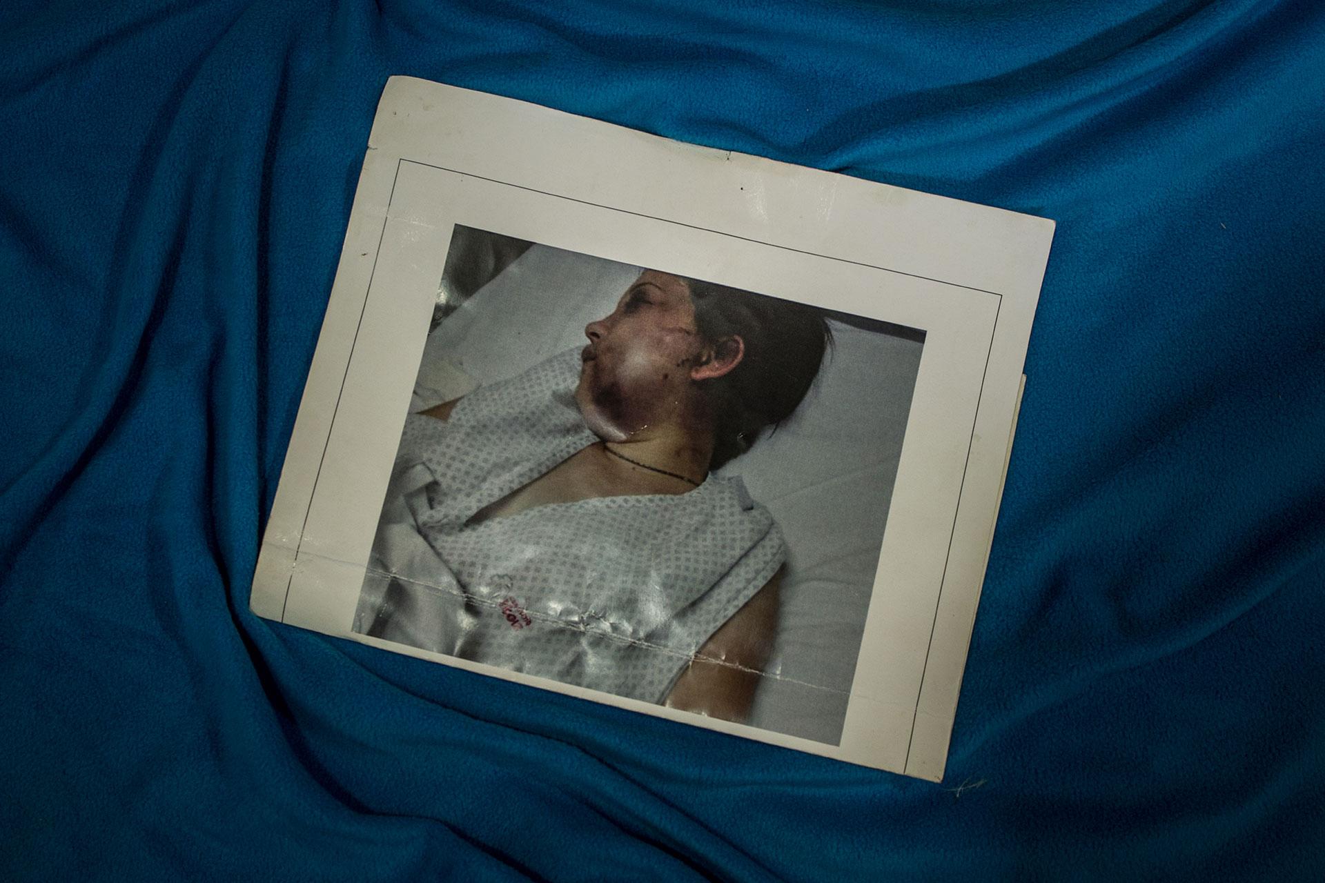 Belén Torres, de 20 años. Esta foto se encontró después de ser atacada.