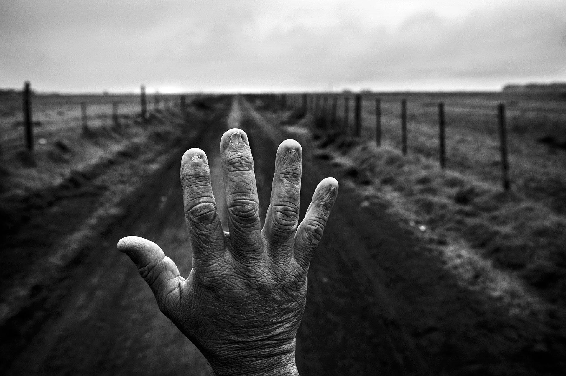 23/9/2015. Monte Maíz, Provincia de Córdoba, Argentina. Alfredo Cerán trabajó durante nueve años como fumigador, tratando con productos químicos las plantaciones de soja. Se le quemaron las uñas. Los resultados de sus análisis de sangre muestran residuos de sustancias como el glifosato, el clorpirifós, la azatrina, el 2.4-D y la cipermetrina.