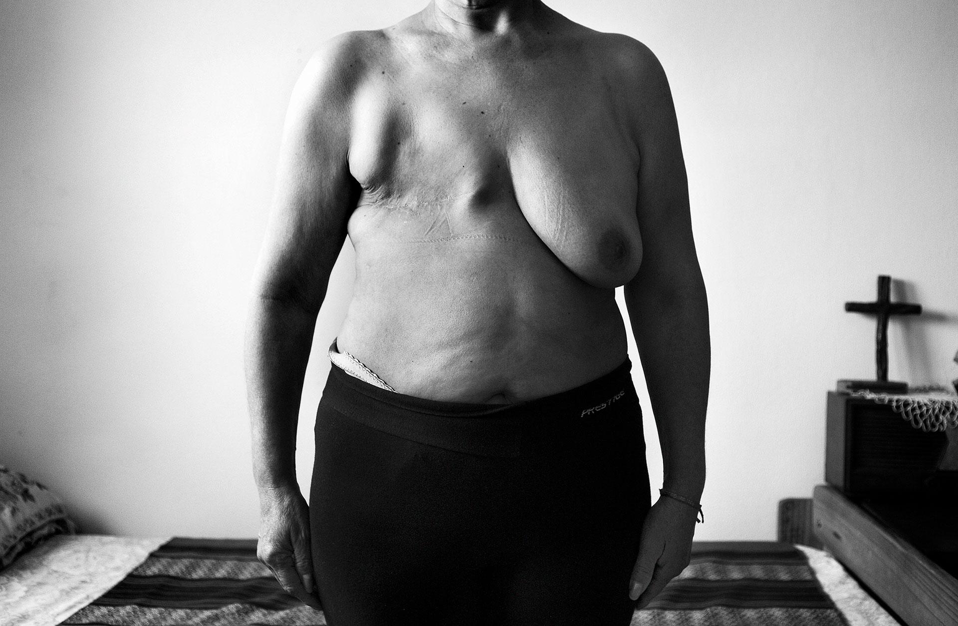 9-2015. Monte Maíz, Córdoba. En el pueblo de Monte Maíz, la Universidad de Córdoba realizó estudios socio-ambientales que revelaron el aumento de la incidencia de enfermedades oncológicas vinculadas a la contaminación. La incidencia en el pueblo es tres veces superior a la de la provincia y a la de la nación. La investigación reveló una enorme incidencia de cáncer entre la población, unos 707 casos por cada 100.000 personas, comparados con los 264 casos de la provincia o los 217 de Argentina. El cáncer es la primera causa de mortalidad en Monte Maíz y supuso el 33.4% del total en 2014. La media de Argentina se sitúa en un 20%, por detrás de las enfermedades cardiovasculares.