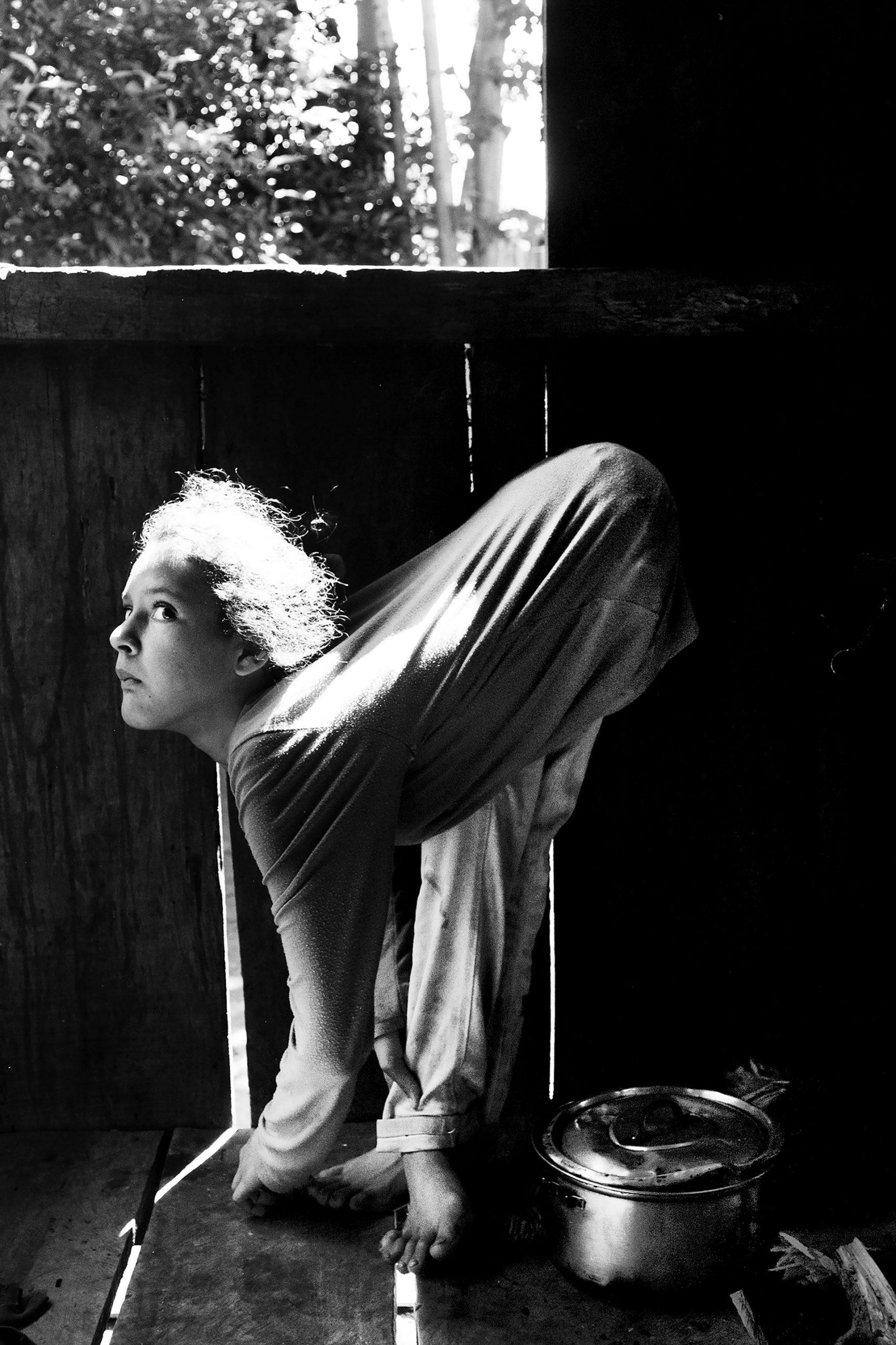 7-4-2015. Fracrán, Provincia de Misiones. Desde los 7 años, Jesica Sheffer (actualmente 11) sufre una malformación de los tendones que le impide estar erguida. Fracrán es una zona productora de tabaco con un alto índice de incidencia de personas afectadas por los agrotóxicos. En la provincia de Misiones, cinco de cada mil niños o niñas nacen con mielomeningocele (MMC), una grave malformación del sistema nervioso central. Nacen con espina bífida, lo cual les provoca incontinencia urinaria y fecal y problemas en los miembros inferiores.