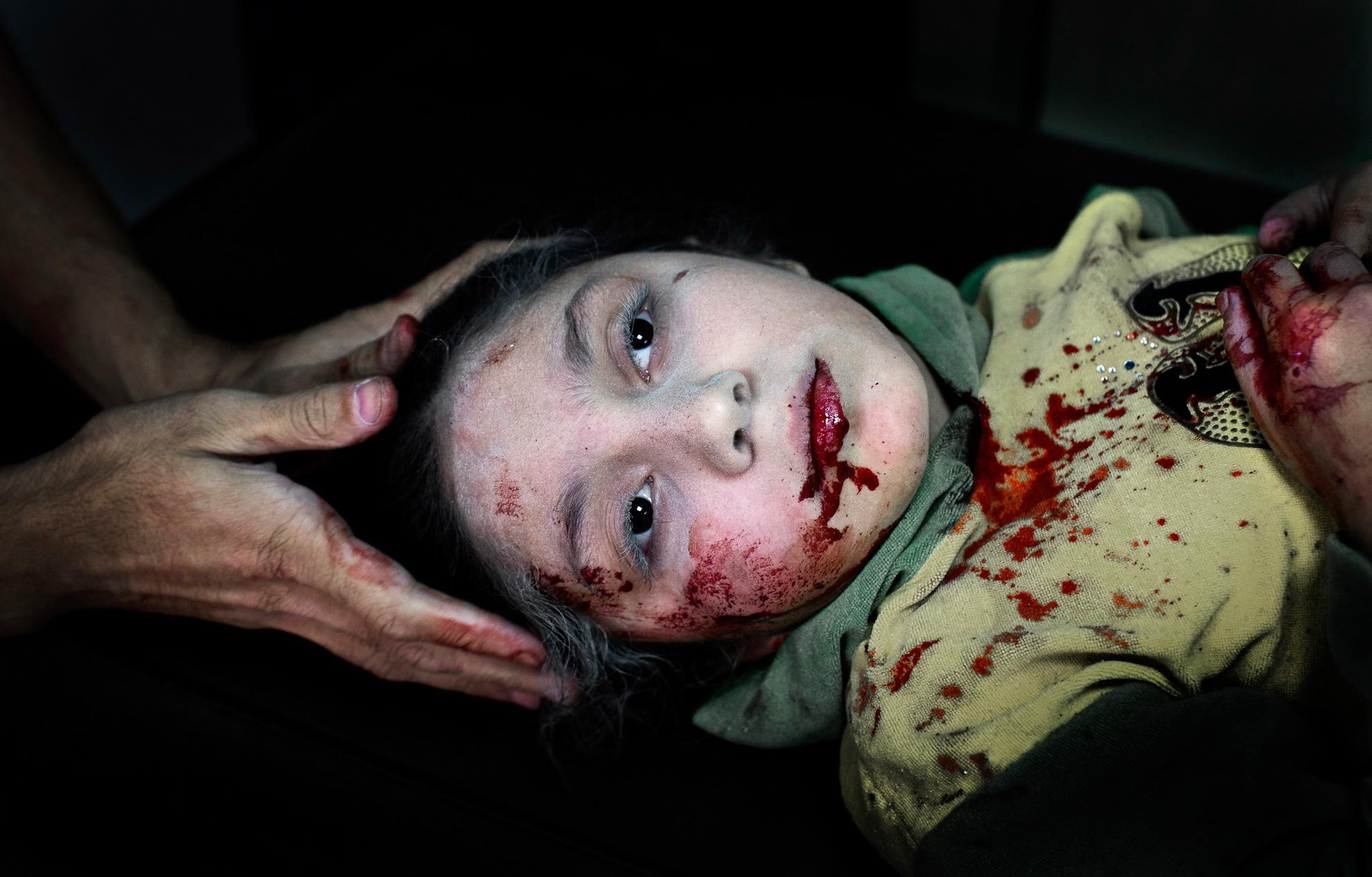 Alepo, Siria. 15-10-2012. Dania Kilsi, de 11 años, es tratada por heridas de metralla en el hospital de Dar-al Shifa. Ella y sus dos hermanos menores, Zaid, de 2 años y Fátima de 6 años, estaban jugando fuera de su casa cuando resultaron heridos por una bomba.