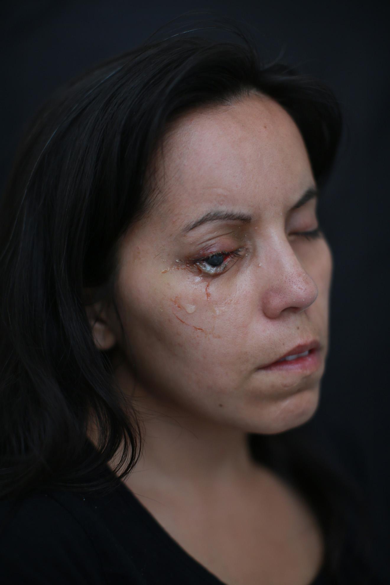 """Marlén Morales (33) operaria de producción de una multitienda nacional. """"Caminaba con mi hija y recibí un perdigón en el ojo en la comuna de Lo Prado. Nunca he participado de alguna marcha. Soy madre soltera de 3 hijos, no sabe cuánto lamento haber salido a caminar aquel día, tengo perdida total de mi vista""""."""