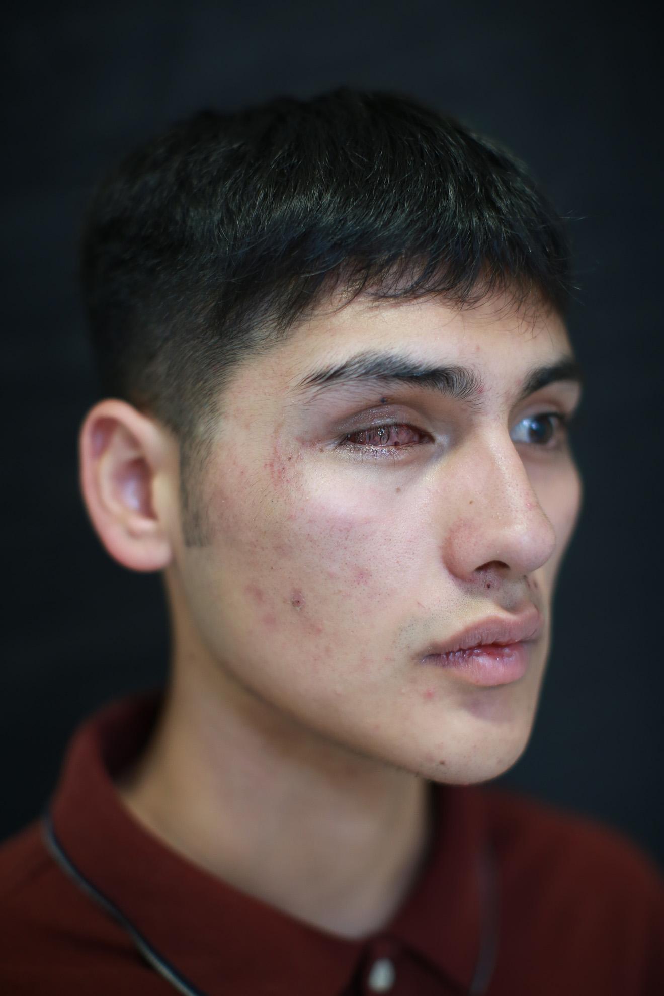 """Raúl del Valle (18). """"Asistí a la marcha el 22 de octubre, porque nos pasan a llevar, tengo perdida total de la vista. Volvería a protestar después para que las cosas no sigan como están""""."""