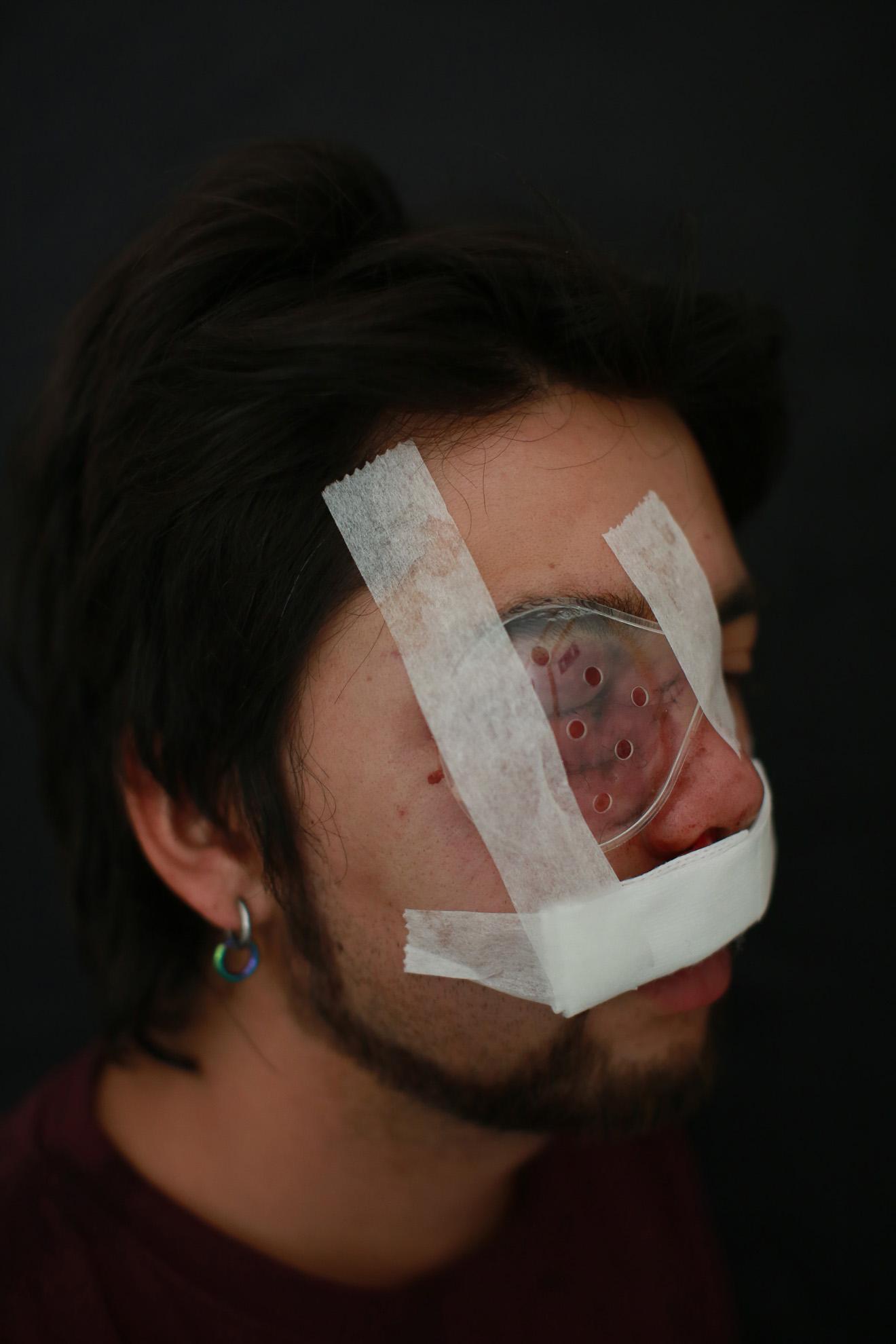 """Diego Leppez (27) fue impactado por una bomba lacrimógena que le provocó la pérdida de la vista y una fractura nasal el 15 de noviembre en calle Pio Nono. """"Retornaba del trabajo, no estaba participando de la marcha""""."""