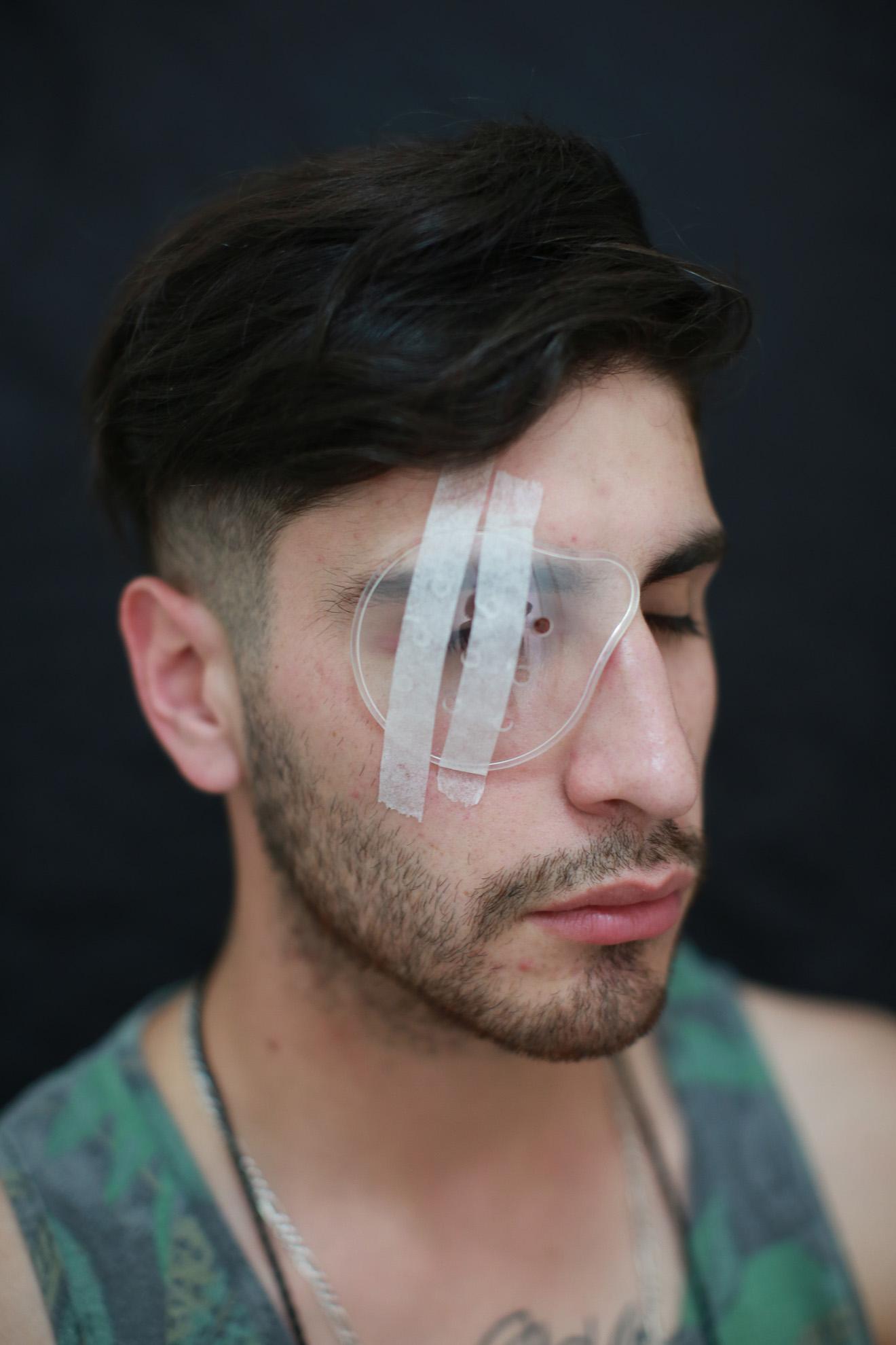 Jorge Barros (23), trabaja en mensajería. Asistió el martes 5 de noviembre de 2019 a la marcha. Su interés de participar en la protesta fue por un mejor trato que sea para todos. Ha perdido por completo la visión del ojo derecho.
