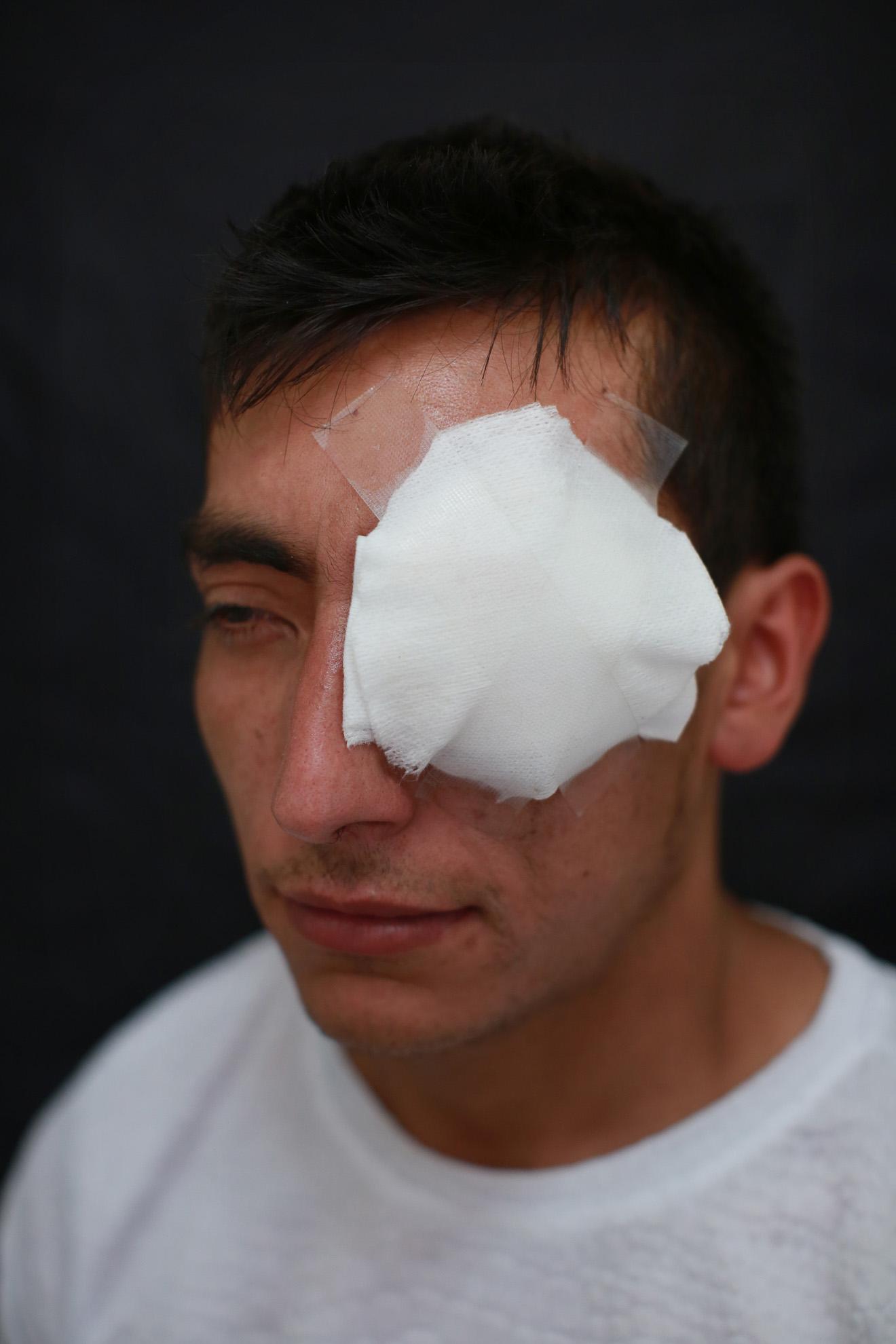 """Leonardo Becerra (27). El día 22 de octubre de 2919 fue impactado en el ojo izquierdo, causando la perdida total de la visión. Vidriero de profesión, no estaba participando en la manifestación. """"Quedé atrapado en medio de la protesta, me asusté, empecé a correr, fue ahí que me dispararon""""."""