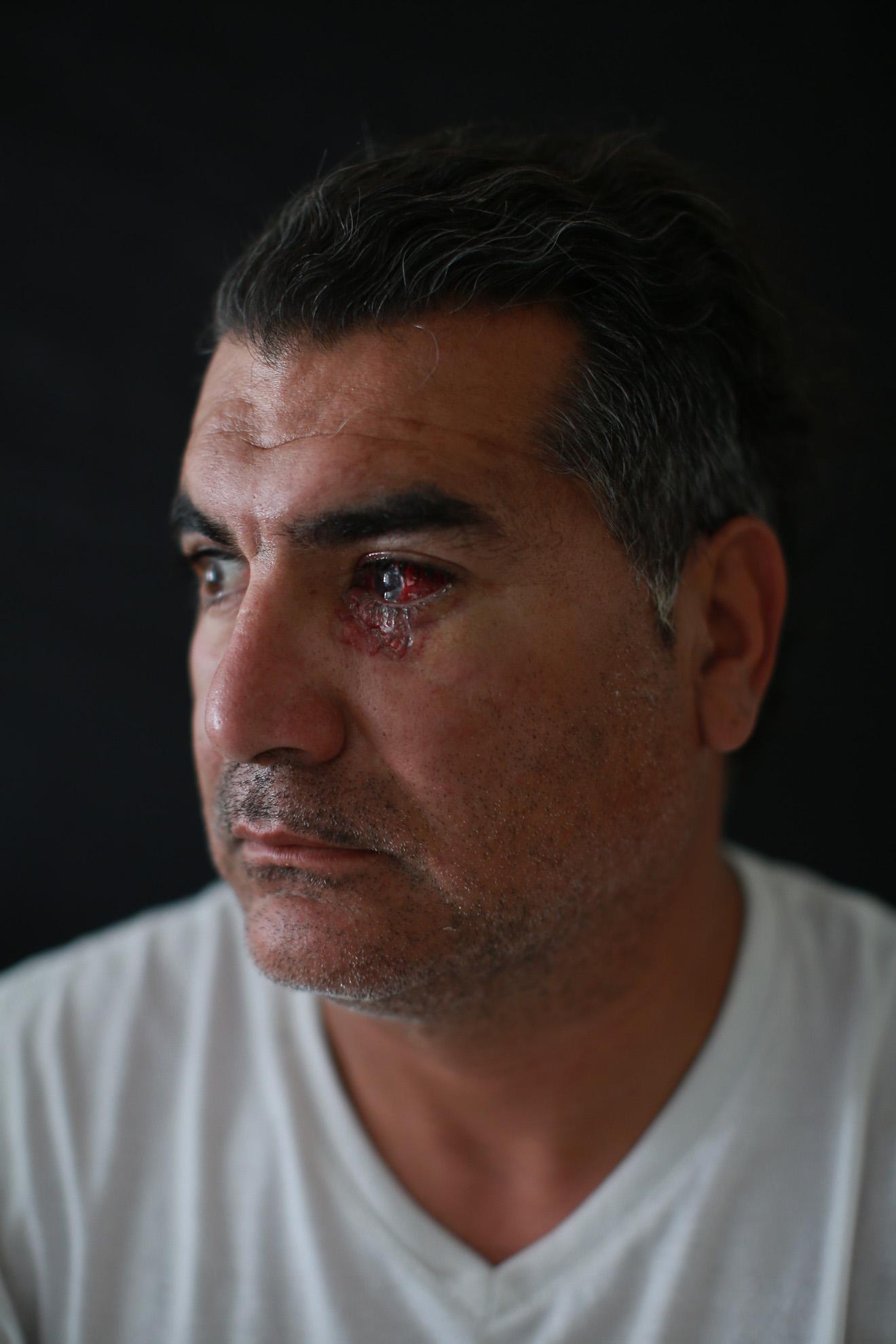 """Albano Toro (40), paramédico, herido en un hospital de campaña mientras asistía a un manifestante. """"El jueves 21 de noviembre (2019) estaba atendiendo y recibí el disparo. Tengo perdida total de la vista y aún estoy en observación. Después de esto voy a descansar. Esto me cambió la vida. Tengo una madre jubilada y depende de mi sustento."""""""