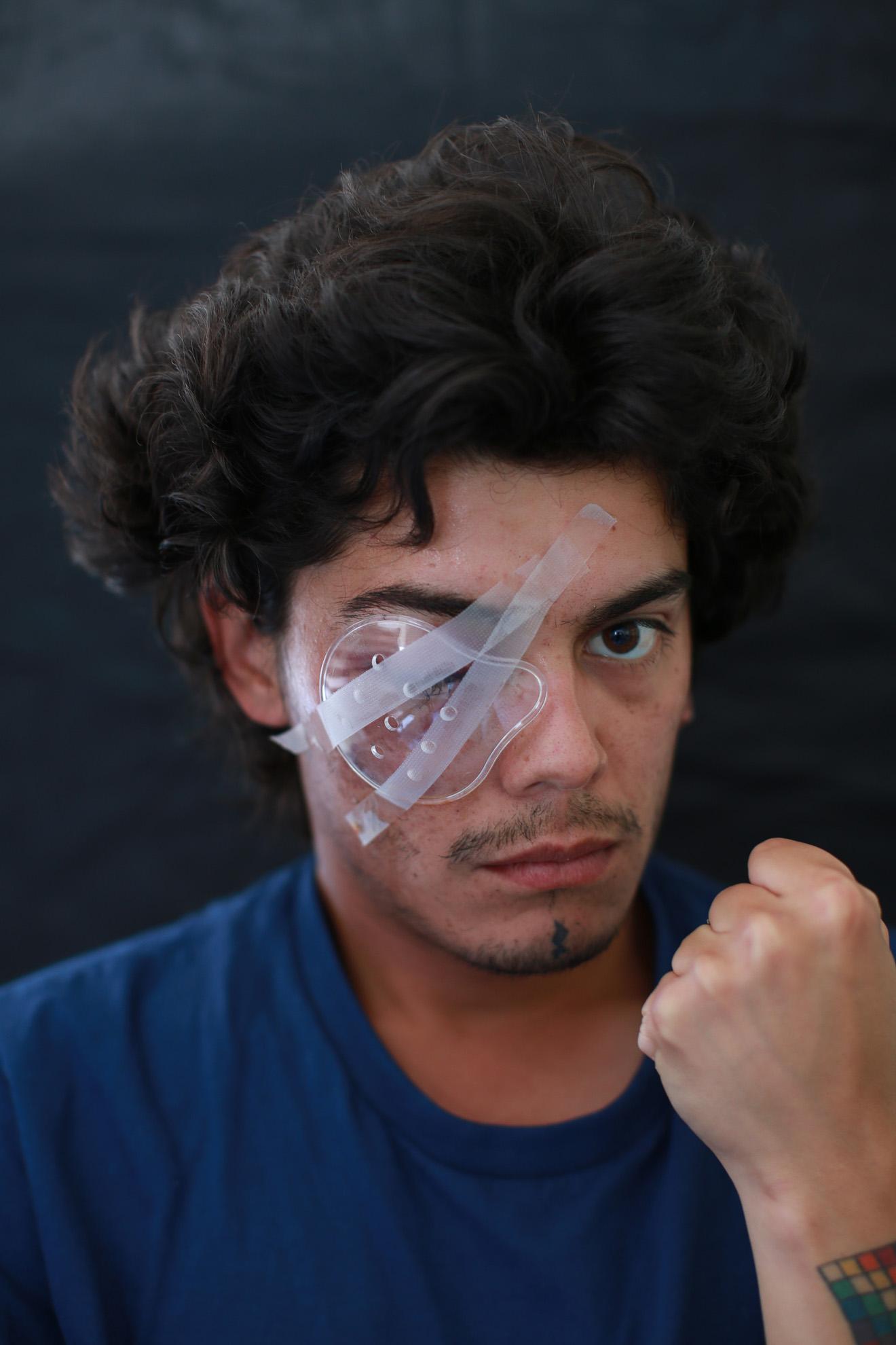 """Camilo Gálvez (24) maquinista de profesión y dueño de una página en redes sociales como thetravel antü. """"Nunca he participado de ninguna marcha, quedé atrapado en medio de la protesta, frente al centro cultural GAM. Tengo el ojo comprometido y no tengo visión. Estoy esperando por mi segunda operación""""."""