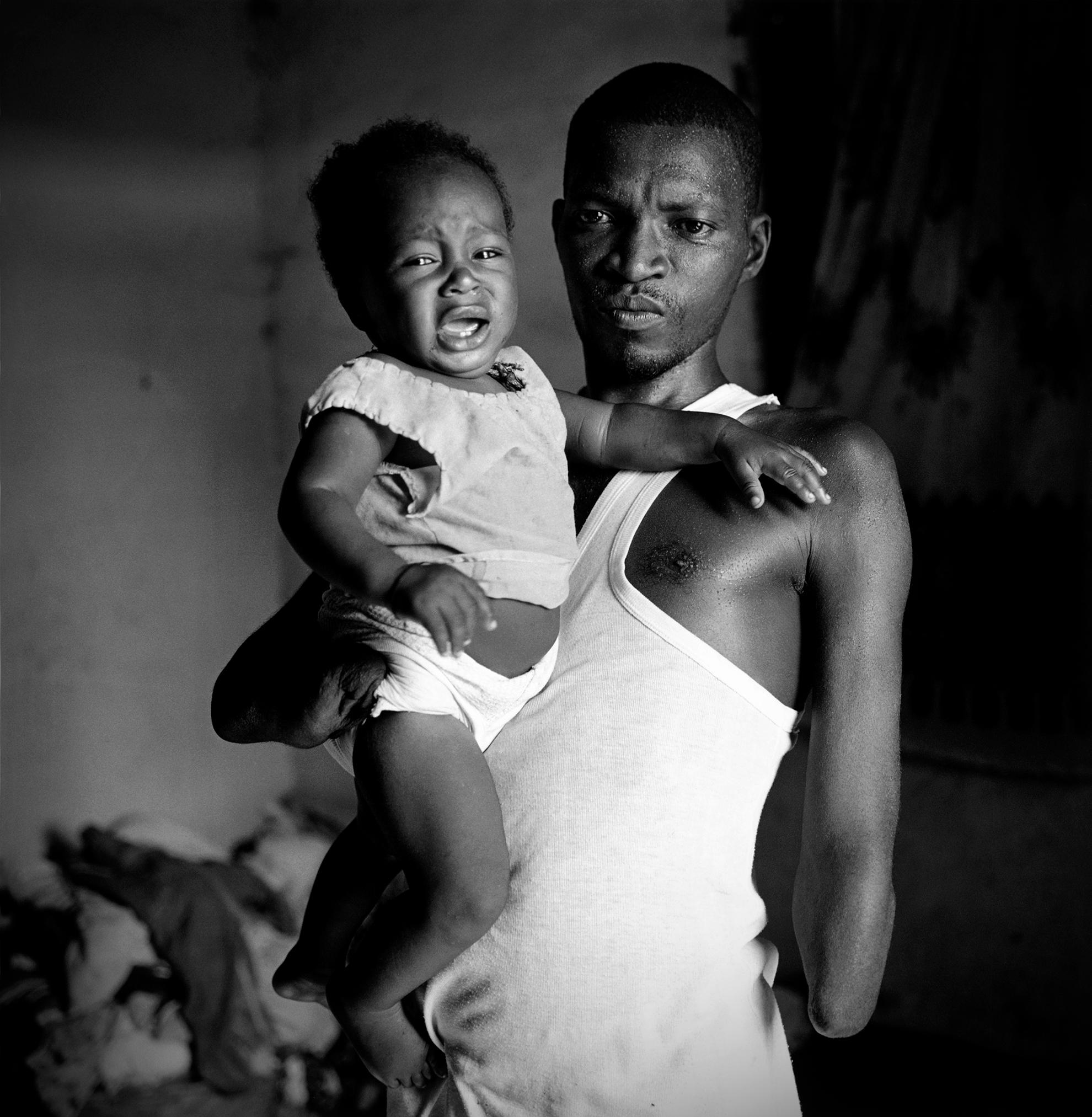Abu sostiene en su brazo a su hijo menor Morris en el refugio familiar del campo de mutilados de guerra en el que viven.